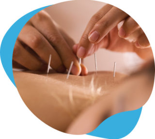 acupincture